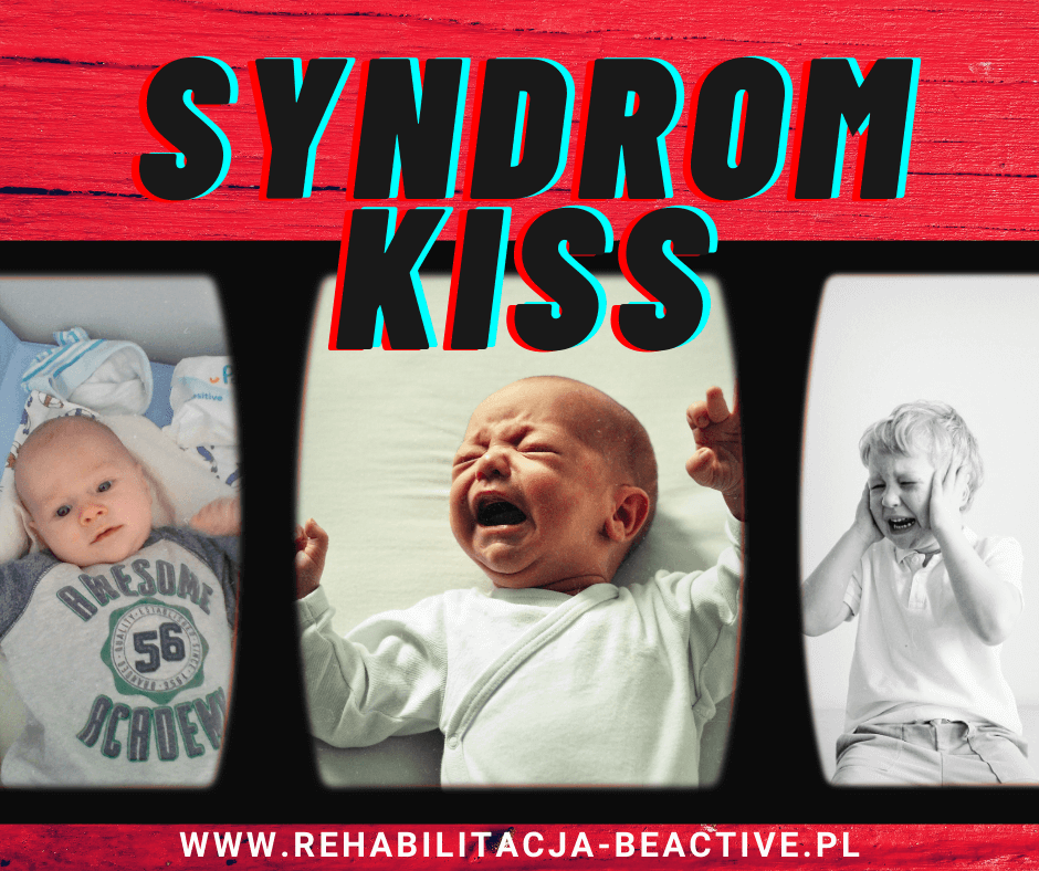Syndrom Kiss